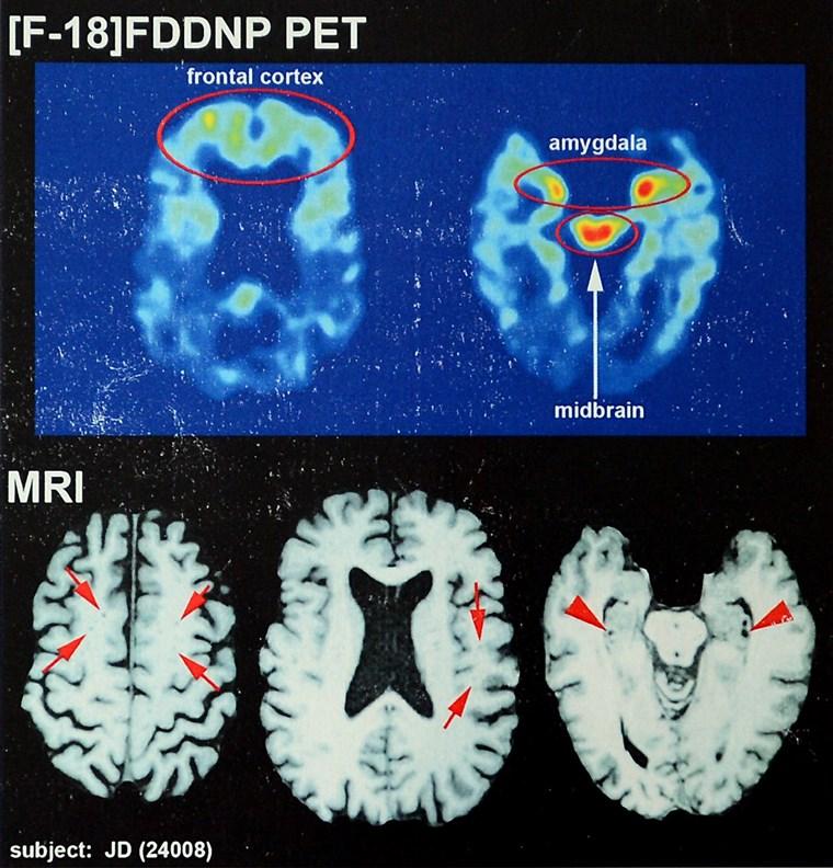 Image: chronic traumatic encephalopathy