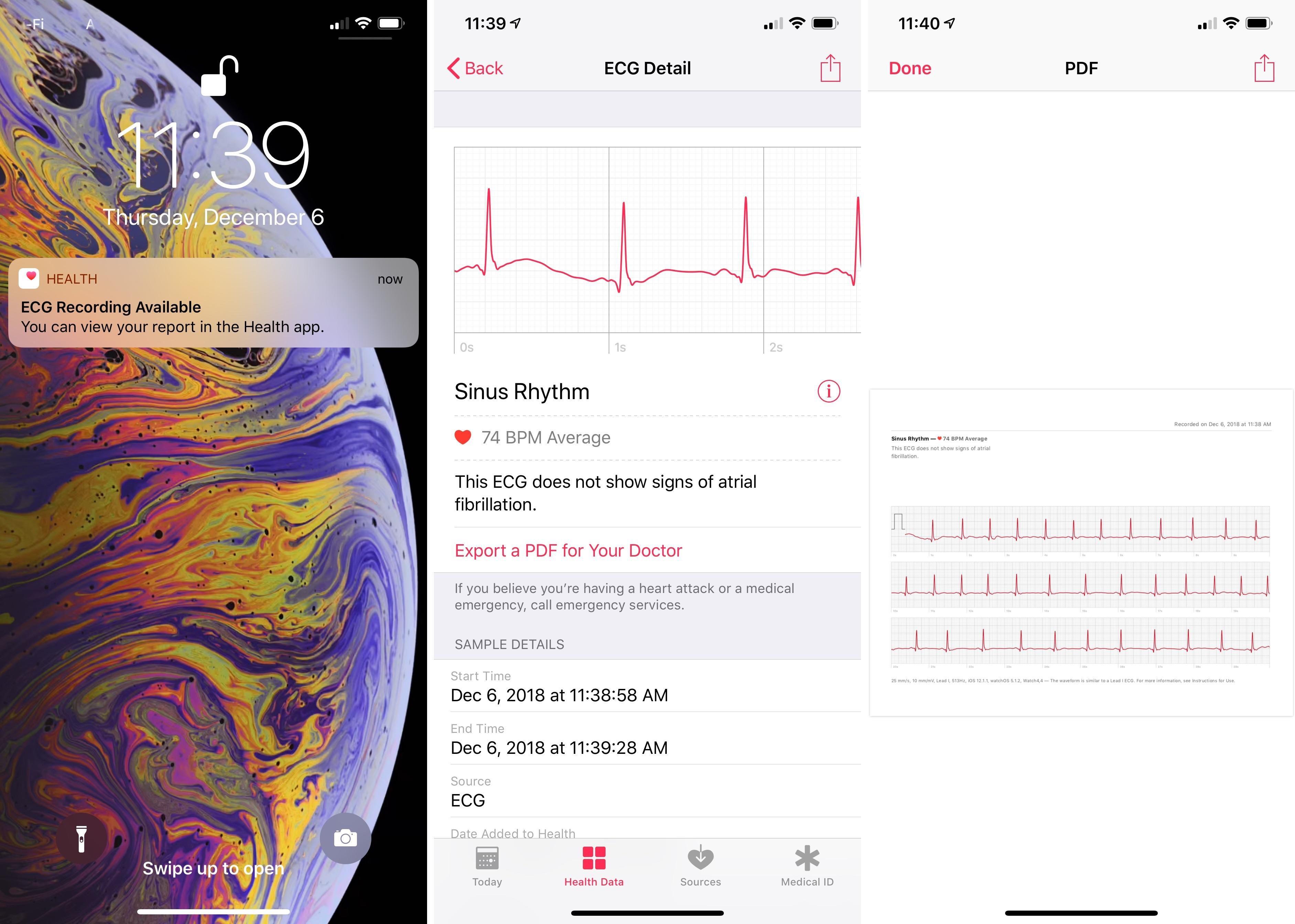apple-watch-ecg-health-app