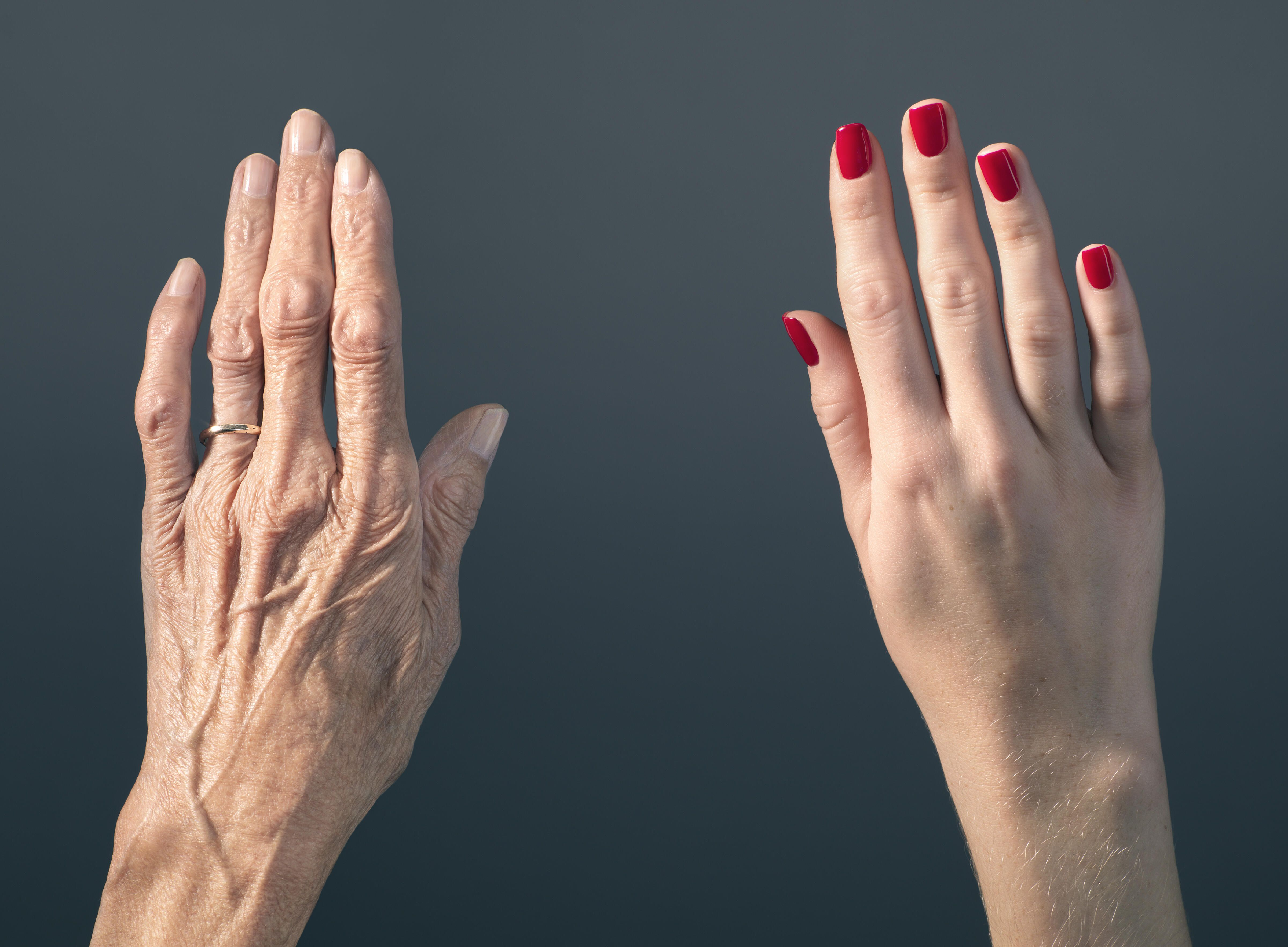 old and young skin