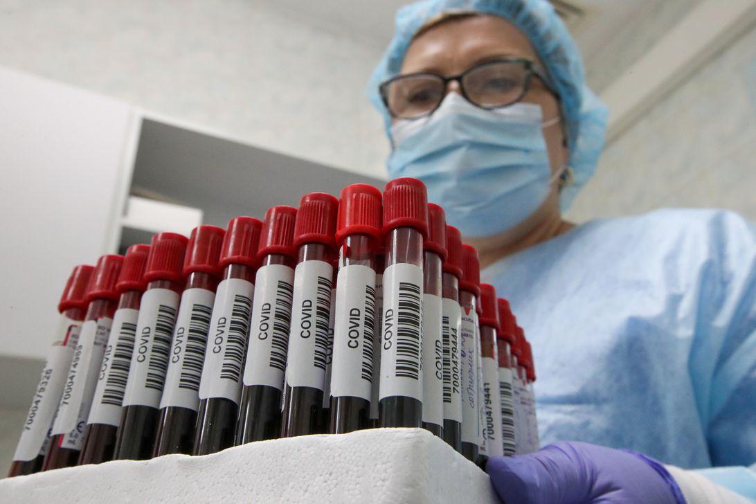 COVID-19 blood test