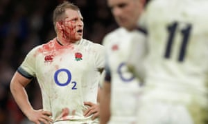 A bloodied England captain Dylan Hartley during the England v Wales Six Nations match at Twickenham in 2018
