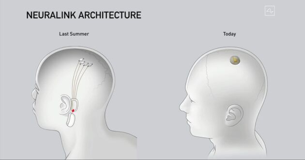 Last year's design for Neuralink's implant (at left) has been simplified, as shown at right. (Neuralink Illustration)