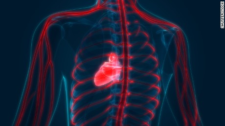 Covid-19 study suggests to screen recovering athletes for heart inflammation before they return to play