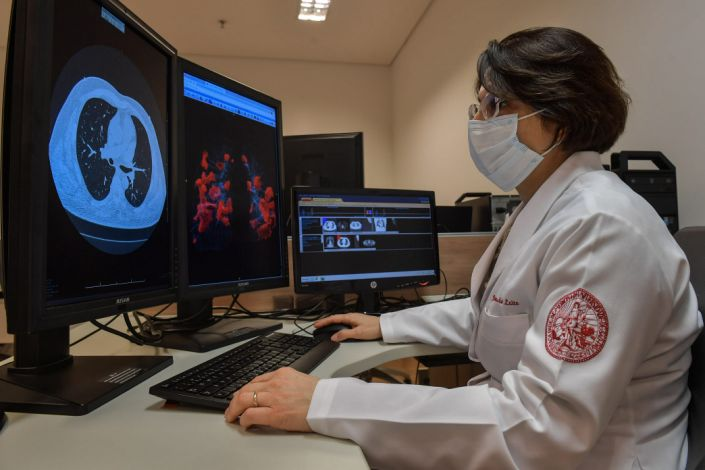 "Claudia da Costa Leite, a radiology professor at University of Sao Paulo, examines lung scans on July 29, 2020. <p class=""copyright"">Nelson Almeida/AFP/Getty Images</p>"